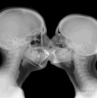x-ray-of-a-couple-kissing-guy-viner